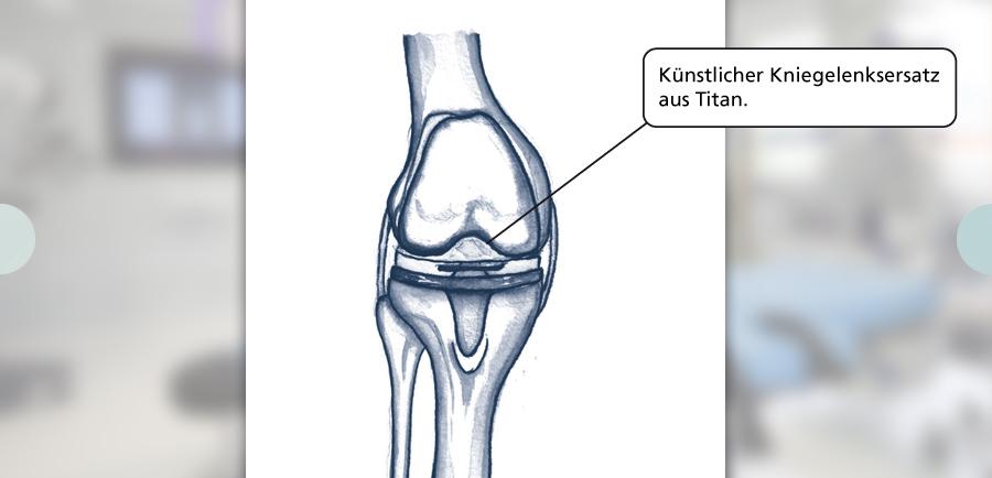 Entdecken Sie neue Lebensqualität mit einem künstlichen Kniegelenk Durch Erkrankungen beziehungsweise Abnutzungserscheinungen können starke Schäden mit Schmerzen im Knie auftreten. Zu den ursächlichen Krankheiten gehören unter anderem Arthrose, Gelenkrheuma sowie Entzündungen anderer Ursache. Ebenso können Verletzungen am Gelenk oder Knochenbrüche in Knienähe die Verursacher sein. Die Folgen sind immer gleich: starke Schmerzen. Ein künstliches Kniegelenk muss meistens dann eingesetzt werden, wenn es bei Abnutzungserscheinungen zu starken Schäden im Knie gekommen ist. Es handelt sich um eine Operation, in der die Prothese als Ersatz des natürlichen Kniegelenks eingepflanzt wird. Dafür gibt es Knieprothesen in mehreren Formen. Am häufigsten werden Oberflächenersatzprothesen (Vollersatz) oder Schlittenprothesen (Teilersatz) verwendet.